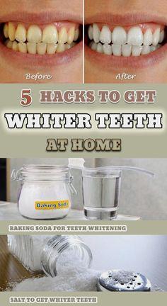 5 Great Hacks to Get Whiter Teeth at Home - Mundpflege Natural Teeth Whitening, Whitening Kit, Skin Whitening, Homemade Teeth Whitening, Home Remedy Teeth Whitening, Natural Toothpaste, Home Remedies, Natural Remedies, Get Whiter Teeth