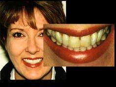 Dawn - Patient of Dr. Tommy Oppenheim, Thomasville, GA, Oppenheim Signature Smiles www.signaturesmiles.com