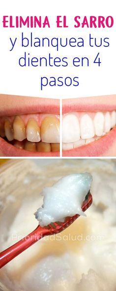 Blanquear los dientes y eliminar el sarro dental en casa. Como hacer una limpieza dental sin ir al dentista. #dental #dentalhealth #limpieza #dentistry #blanquear Healthy Beauty, Health And Beauty, Healthy Life, Health And Wellness, Health Fitness, Beauty Care, Diy Beauty, Beauty Hacks, Natural Treatments