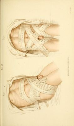 [Manual of surgical bandages, devices and dress...  Torso