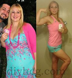 HCG Before and After Pictures | HCG Weight Loss Photos | HCG Diet Success Stories