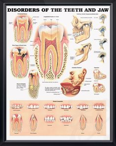 Disorders of Teeth and Jaw anatomy poster illustrates periodontal disease, three stages of dental cavities, abscess formation and TMJ. Dental chart for doctors and nurses.
