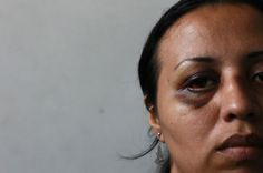 Evelyn Hernandez Sanchez, 30, is pictured with her injuries in the facial surgery unit at the Rosales hospital in San Salvador July 4, 2013....