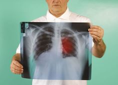 What Are The Causes of Lung Cancer?