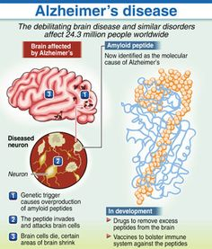 understanding the science behind the alzheimers disease Lost behind the diagnosis of alzheimer's disease understanding the individual with alzheimer's in alzheimer's disease research, nova science.