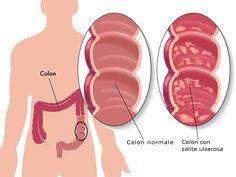 Malattie infiammatorie intestinali: Colite Ulcerosa. Una malattia cronica dalle causa non chiare...   http://www.saluteintestinale.com/colite-ulcerosa/