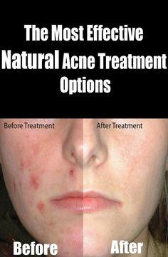 The Most Effective Natural Acne Treatment Option