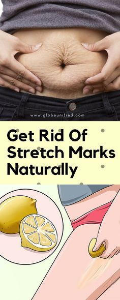 Get Rid Of #StretchMarks Naturally