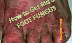 How to Get Rid of Foot Fungus howgetrid.net