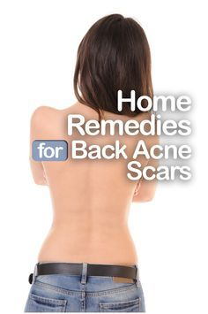 Here we are providing you with the 8 best natural home remedies for fading your bacne scars.