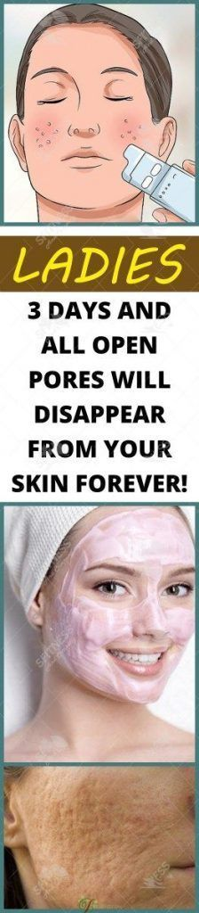 AMAZING RESULTS 3 Days and All Open Pores Will Disappear from Your Skin Forever!