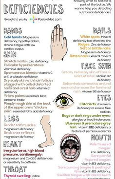 Detecting Nutritional Deficiencies by examining your nails, tongue, eyes, skin #infographic