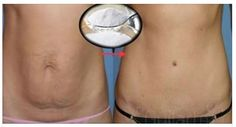 nice BAKING SODA REMOVES FAT FROM 3 ZONES, BUT ONLY IF YOU PREPARE IT LIKE THIS!