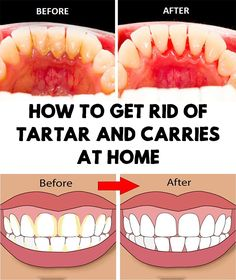 17298055c3 Tartar is represented by mineral deposits on teeth. Over time