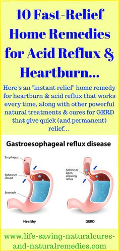 Best Natural Remedies & Home Treatments for Acid Reflux (GERD) & Heartburn Relie. Best Natural Remedies & Home Treatment. Acid Reflux Treatment, Treatment For Heartburn, Natural Remedies For Heartburn, Natural Treatments, Natural Cures, Natural Health, Home Remedies For Gerd, Natural Remedies, Salud