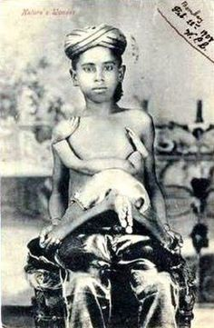 Perumal (also known as Pirumal) joined the circus at a young age. As a marketing ploy, he often dressed his parasitic twin in little girl's clothes. After retiring in 1915, Perumal dropped off the map and his retired life remains a mystery