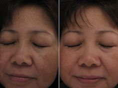 Before & After Gallery Treat Hyperpigmentation at home http://meladermpigmentreducingcomplex.org/