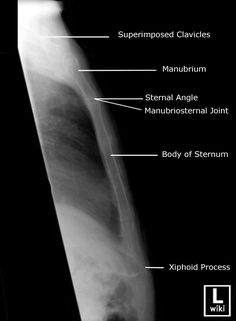 Radiographic Anatomy - Sternum Lateral