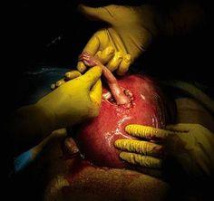 Nurse  Birth of newborn