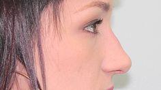 Rhinoplasty Surgical Plan Amanda part 1 of 10