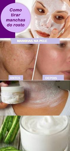 Como remover manchas na pele - great idea - Best Beauty Tips, Natural Beauty Tips, Beauty Care, Beauty Secrets, Diy Beauty, Beauty Skin, Health And Beauty, Beauty Hacks, Natural Hair Styles
