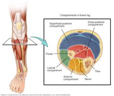 Chronic exertional compartment syndrome - Symptoms and causes - Mayo Clinic Muscle And Nerve, Muscle Body, Muscle Fascia, Compartment Syndrome, Dry Needling, Critical Care Nursing, Muscular System, Shin Splints, Leg Pain