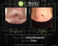 "Cyndi was the biggest skeptic. ""These were my very first wrap results, back when I was trying to prove it couldn't possibly work! I had lost 51 pounds with diet and exercise and while I was looking great in clothing, my stomach was a disaster. I didn't want to try the wrap, I told Danielle it was water loss, it was temporary and VOODOO. She begged me to try it out because if it worked on my stomach, she was going to sell it in the salon. As they say, the rest is history!"""