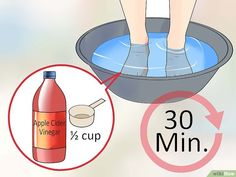 How to Get Rid of Foot Fungus at Home. Foot fungus can make you really uncomfortable, so you likely want relief right away. You usually develop foot fungus because your feet are moist or you've been walking barefoot in a public place. Toe Fungus Remedies, Foot Remedies, Homemade Foot Soaks, Diy Foot Soak, Black Toenail Fungus, Foot Soak Vinegar, Black Toe Nails, Pedicure At Home, Feet Care