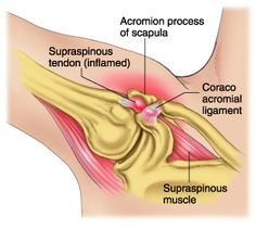 """Shoulder impingement. Not to play the hoity toity Jonny Raincloud card, but the words themselves – shoulder impingement – is a garbage term. It doesn't really mean anything. To one degree or another your shoulder is always being """"impinged."""" So when you or your trainer or someone with more letters next to their name (or...  Read more"""