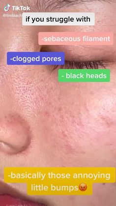 Face Skin Care, Diy Skin Care, Skin Care Tips, Face Care Tips, Sebaceous Filaments, Haut Routine, Brown Spots On Face, Clear Skin Tips, How To Clear Skin
