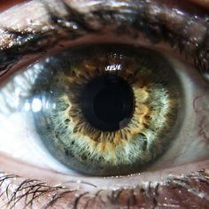 lynda olsen central heterochromia-1-6✖️No Pin Limits✖️More Pins Like This One At FOSTERGINGER @ Pinterest✖️