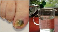 Combat Nail Fungus With This Natural Three-Ingredient Recipe - Living Well Health Remedies, Home Remedies, Ear Reflexology, Three Ingredient Recipes, Homemade Shampoo, Nail Fungus, Recipe Today, Healthy Tips, Body Care
