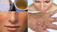 This homemade lotion is made out of lemon(or apple cider vinegar) and parsley leaves. It whitens the skin and lightens freckles or dark spots of the face. After you apply this to the face,. Whitening Cream For Face, Skin Whitening, Dark Spots On Face, Acne Remedies, Tips Belleza, Beauty Secrets, Healthy Skin, Healthy Food, Healthy Recipes