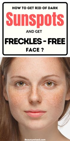 How To Get Away, How To Get Rid, How To Remove, Getting Rid Of Freckles, Freckle Remover, Sunspots On Face, Home Treatment, Face Products