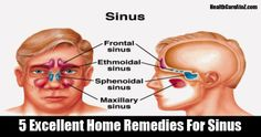 5 Excellent Home Remedies For Sinus