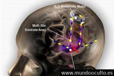 Existen prótesis de cerebro biónica?