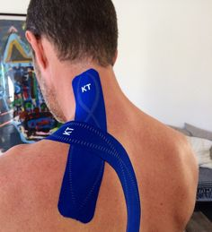 Custom KT Tape app for cramping/spasming of the levator scapulae muscle