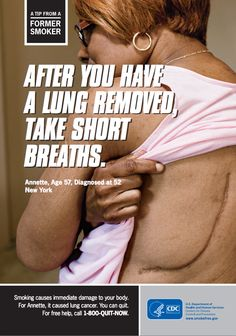 42 Best Health Smoking Lung Cancer Images Smoking