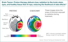Brain Tumor: Proton therapy delivers less radiation to the brain stem, eyes, and healthy tissue than X-rays