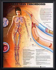 Deep Vein Thrombosis anatomy poster illustrates how a thrombus (blood clot) forms, vascular circulation and pulmonary embolism. Cardiology chart for doctors and nurses.