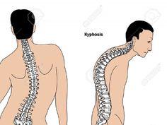 ¿Sos Alto Jorobado? 6 ejercicios para enderezar la Espalda - Taringa!