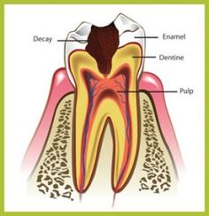 root canal therapy columbia south carolina http://pix.ie/dentistcolumbia/3371287