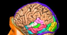 Signs of Lewey Body Dementia:What Distinguishes it From Alzheimer's Lewy Body Dementia Stages, What Causes Dementia, Dementia Facts, Dealing With Dementia, Dementia Awareness, Dementia Activities, Dementia Signs, Alzheimer Care, Dementia Care
