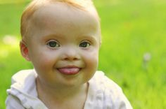 Kids with Down syndrome are as beautiful as any child <3  21 Things People Don't Get About Kids With Down Syndrome