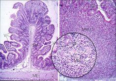 Histology - Small Intestine - Ileum MM = muscularis mucosae SM= submucosa V = villi ME = muscularis externa
