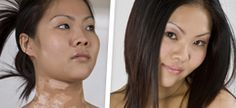 Now remove your bad skin appearance by #vitiligocoverupmakeup. We provide you a complete skin color difference solution to enhance your beauty. For more, explore the presented link.