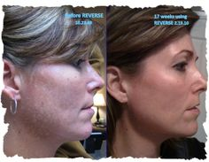 Rodan + Fields before and after REVERSE regimen...for brown spots, dullness and sun damage. Notice the jaw line and evenness and brightness of the after shot skin.   kristinfranzenbsn@gmail.com