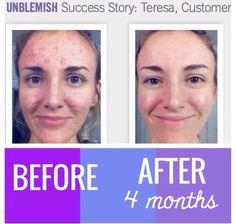 Unblemish skin and rid acne for good! Rodan+Fields UNBLEMISH regimen. #rflove