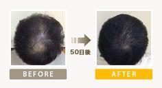 5年前からAGA治療薬を服用も効果がありませんでしたが施術が5回、開始からたった50日での発毛効果です。