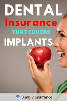 Best Dental Implants, Dental Implant Surgery, Implant Dentistry, Teeth Implants, Dental Insurance Plans, Dental Plans, Dental Braces, Dental Care, Dental Bridge Cost